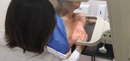 Imagem do Ame de ATA - Mamografia